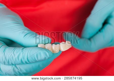 Close Up Picture Of Dentist Holding Ceramic Dental Bridge On Red Background