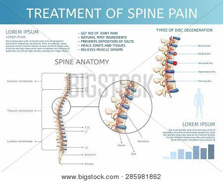 Vector Illustration Treatment Of Spine Pain. Spine Anatomy. Square Flat Banner On White Background.