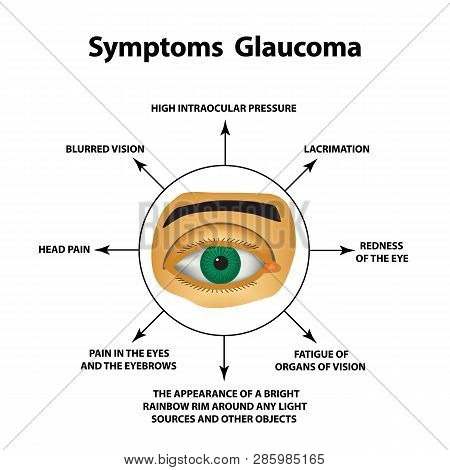 Symptoms Of Glaucoma. World Glaucoma Day. The Anatomical Structure Of The Eye. Infographics. Vector