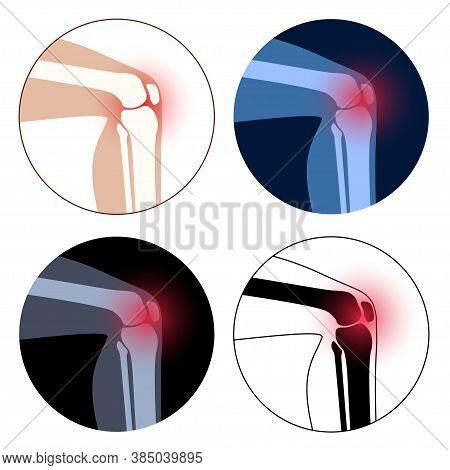 Set With Rheumatoid Arthritis Knee Joint Icon. Clinic Logo With Pain In Leg. Human Bone Anatomy Flat