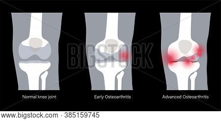 X Ray With Stages Of Osteoarthritis In Knee Joint. Arthritis Disease. Human Leg Bone Anatomy. Skelet