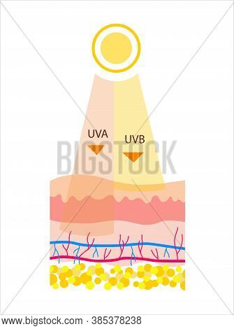 Flat Vector Illustration Of Uvb And Uva Radiation. The Difference Between The Types Of Radiation  In