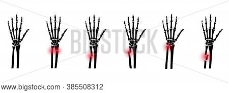 Set With Types Of Fractures And Normal Arm. Inner Closed And Open Trauma. Greenstick, Distal And Com