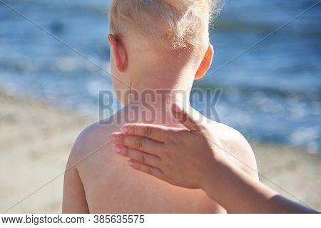 Mom Smears Her Little Son's Back With Sunblock Cream On The Sea Beach.