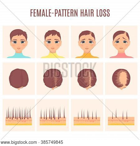 Woman Before And After Hair Loss Treatment In Front And Top View