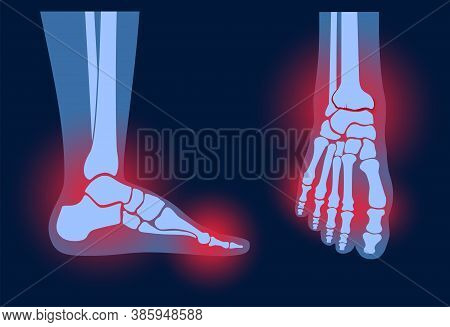 Arthritis Foot Joint In Front And Side View. Rheumatoid Arthritis. Pain In Leg. Human Bone Anatomy F