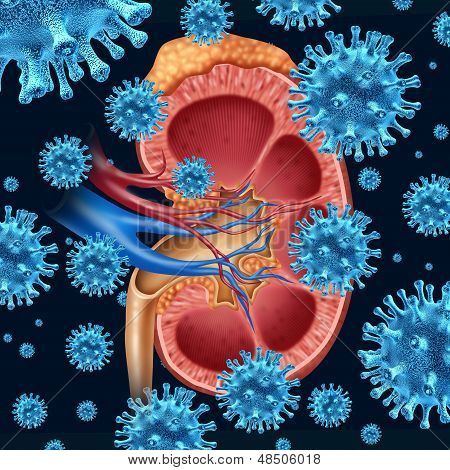 Kidney infection concept with a group of microscopic virus cells infecting a medical diagram with a cross section of the inner organ with adrenal gland as a health care symbol of the anatomy diagnosis of the urinary system. poster