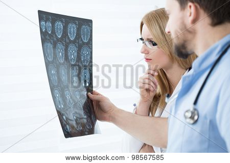 Brain Scanning Results