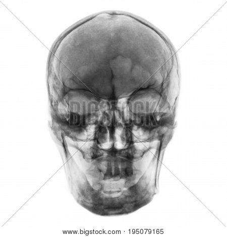 Film x-ray of normal human skull . front view .