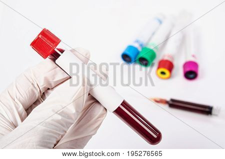 Hand holding test tube with blood plasma ready for testing in laboratory.