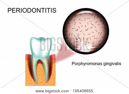 vector illustration of periodontitis. Porphyromonas gingivalis. stomatology.