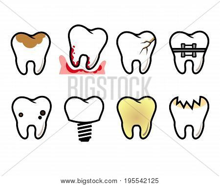 Vector kinds of pathologies of the teeth on a white background