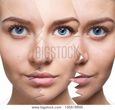 Young woman recovery over split old skin. Before and after retouch.