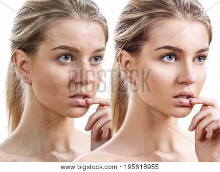 Comparison portrait of young girl with problematic skin before and after treatment.