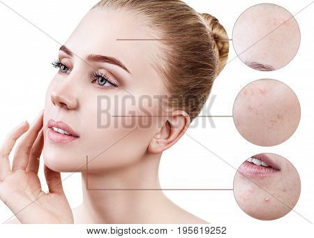 Circles shows problem skin with acne of young woman over white background