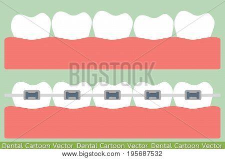 dental cartoon vector - teeth orthodontics treatment