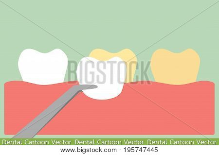 dental cartoon vector - whitening tooth with veneers teeth