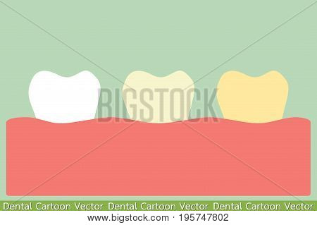 dental cartoon vector - yellow teeth or tooth whitening concept