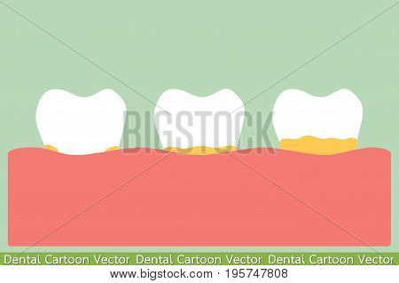dental cartoon vector - tooth periodontal disease with plaque or tartar