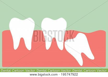 dental cartoon vector - angular wisdom tooth