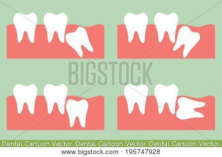 dental cartoon vector - type of wisdom tooth