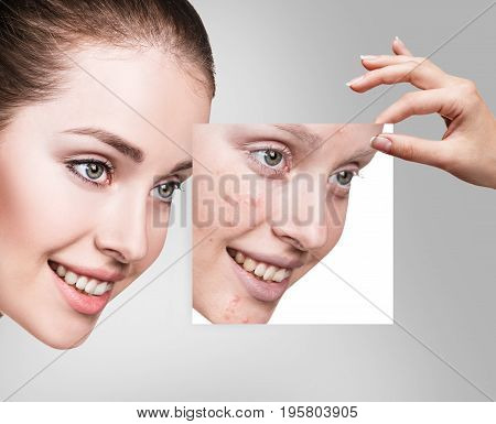 Young woman take picture and point on problem skin before treatment.