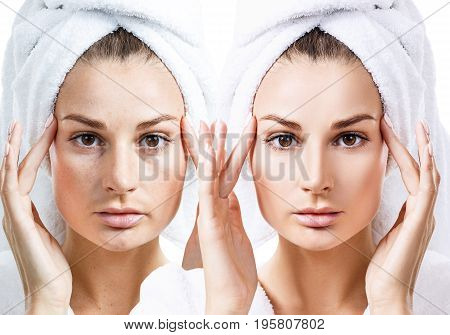 Woman face with bath towel on head before and after retouch.