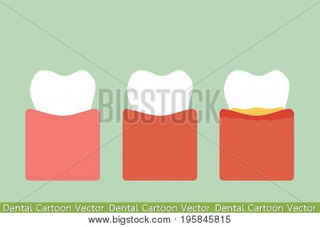 Step Of Gum Disease