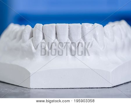 White mold dental of plaster. Replica of a mouth.