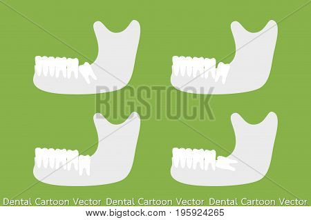 Set Of Type Of Wisdom Tooth With Mandible Or Lower Jaw