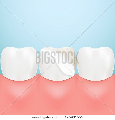 Dental Veneers On A Human Tooth Isolated On A Background. Realistic Vector Illustration. Healthcare stomatology and cleaning professional teeth illustration