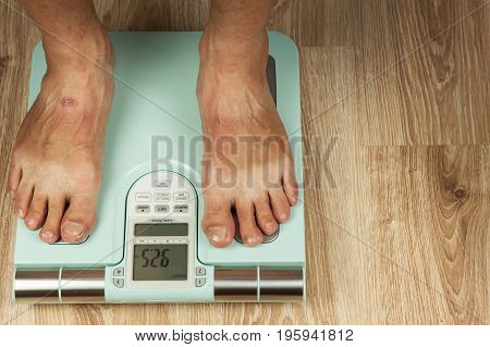 The old man is standing on a modern scale. Measuring the fat content of the body. Intelligent medical weight. The concept of obesity