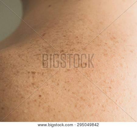 Close up detail of the bare skin on a man back with scattered moles and freckles. Checking benign moles. Sun effect on skin. Birthmarks on skin poster