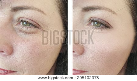 woman wrinkles before and after procedures antiaging poster