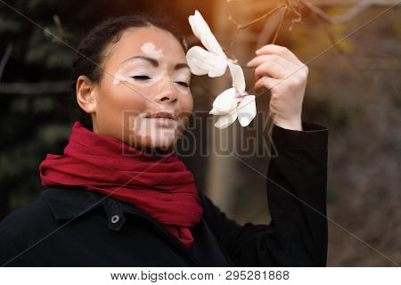 Beautiful African Girl With Vitiligo Standing On The Street Sniffs Spring Flowers. Magnolia Spring B