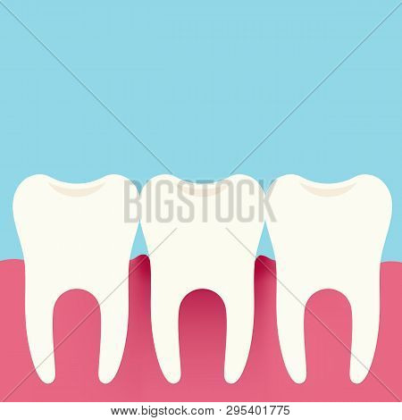 Flat design illustration of three teeth, gums and gingivitis. Dental Care, Isolated On Blue-Green Background - Vector poster