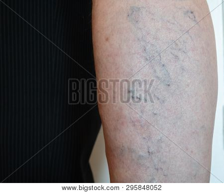 Closeup Of Old Mans Leg With Capillary Mesh Which Cause Varicose Veins
