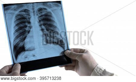 X-ray Of A Person Isolated On White Background. The Doctor Holds A Human X-ray In His Hands.