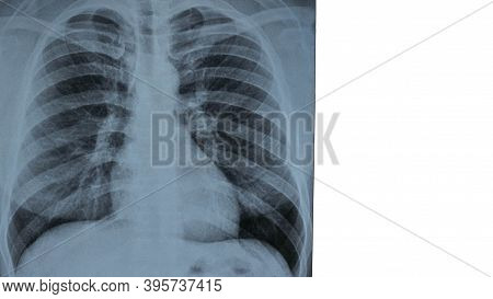 X-ray Of Human Lungs Isolated On White, Place For Text X-ray Of The Lungs.