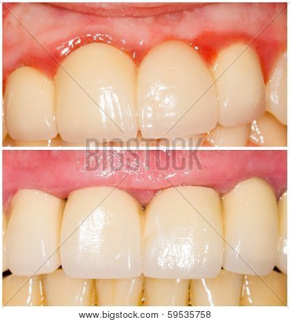 Buffing Teeth Tangent And With Shoulder