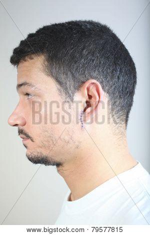 Stitches On Man Face