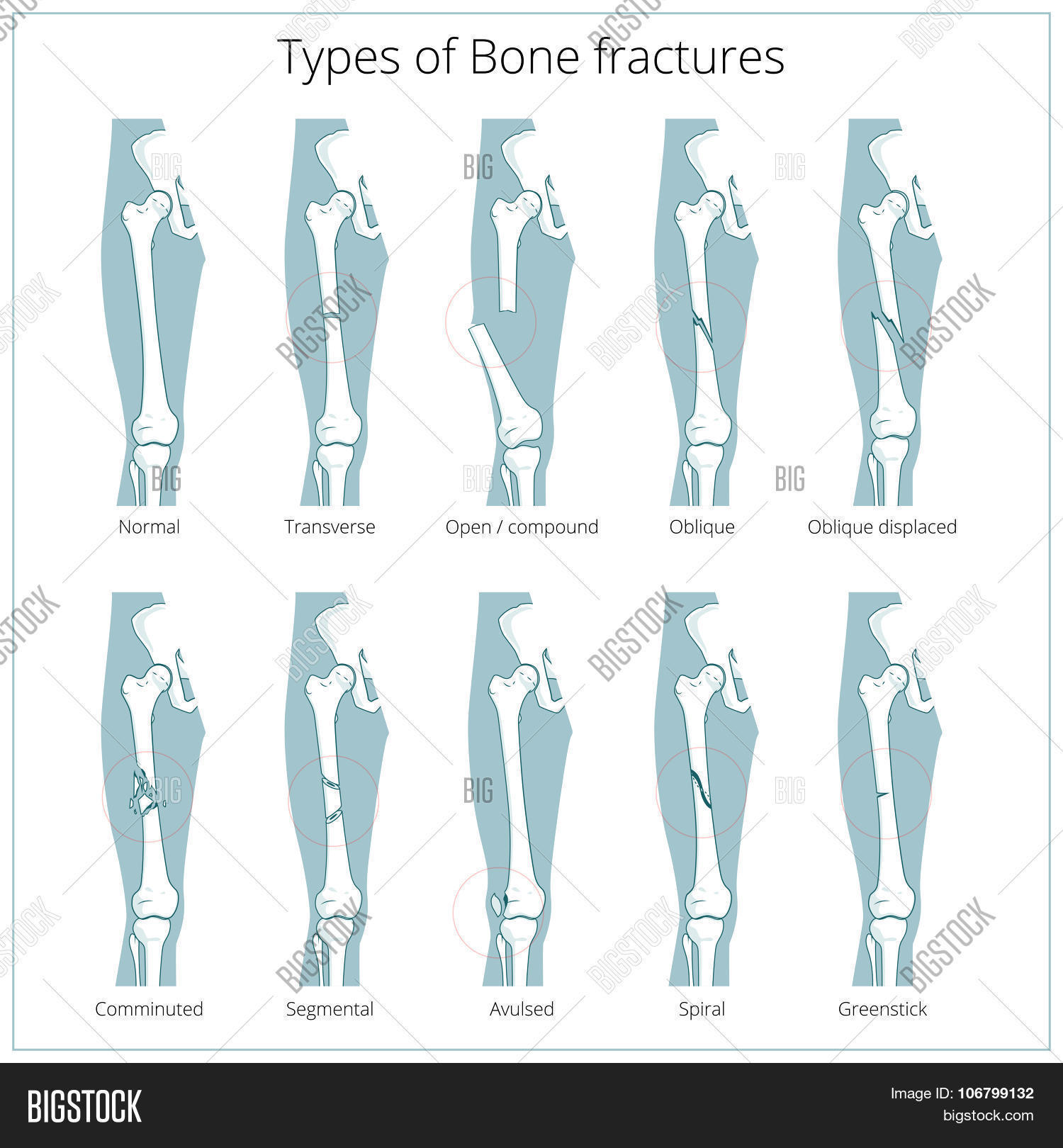Types Bone Fractures Vector Photo Free Trial Bigstock