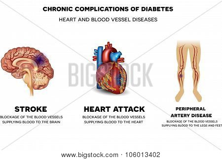 Chronic Complications Of Diabetes