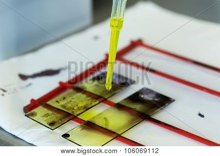 Medical Tools In Microbiology - Biochemical Laboratory And The National Reference Center For Mycobac