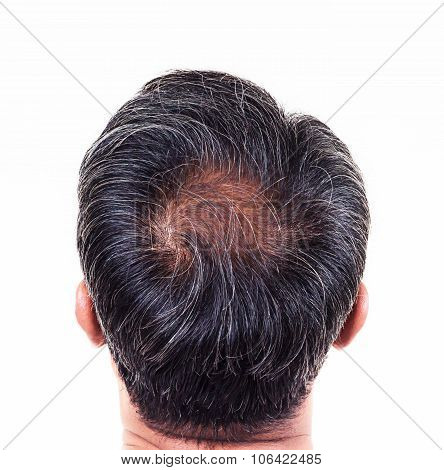 Hair Loss And Grey Hair, Male Head With Hair Loss Symptoms Back Side