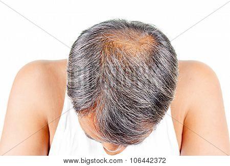 Hair Loss And Grey Hair, Male