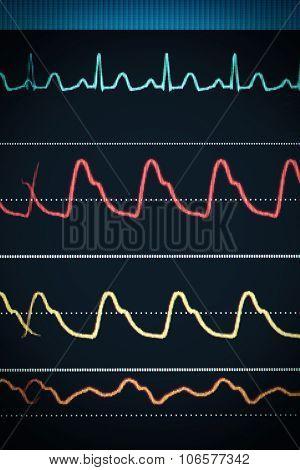Ecg Chart On The Monitor Around The Clock Surveillance