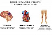 Chronic complications of Diabetes. Heart and blood vessel diseases Stroke Heart attack and peripheral artery disease blockage of the blood vessels supplying blood to the brain heart and legs. poster