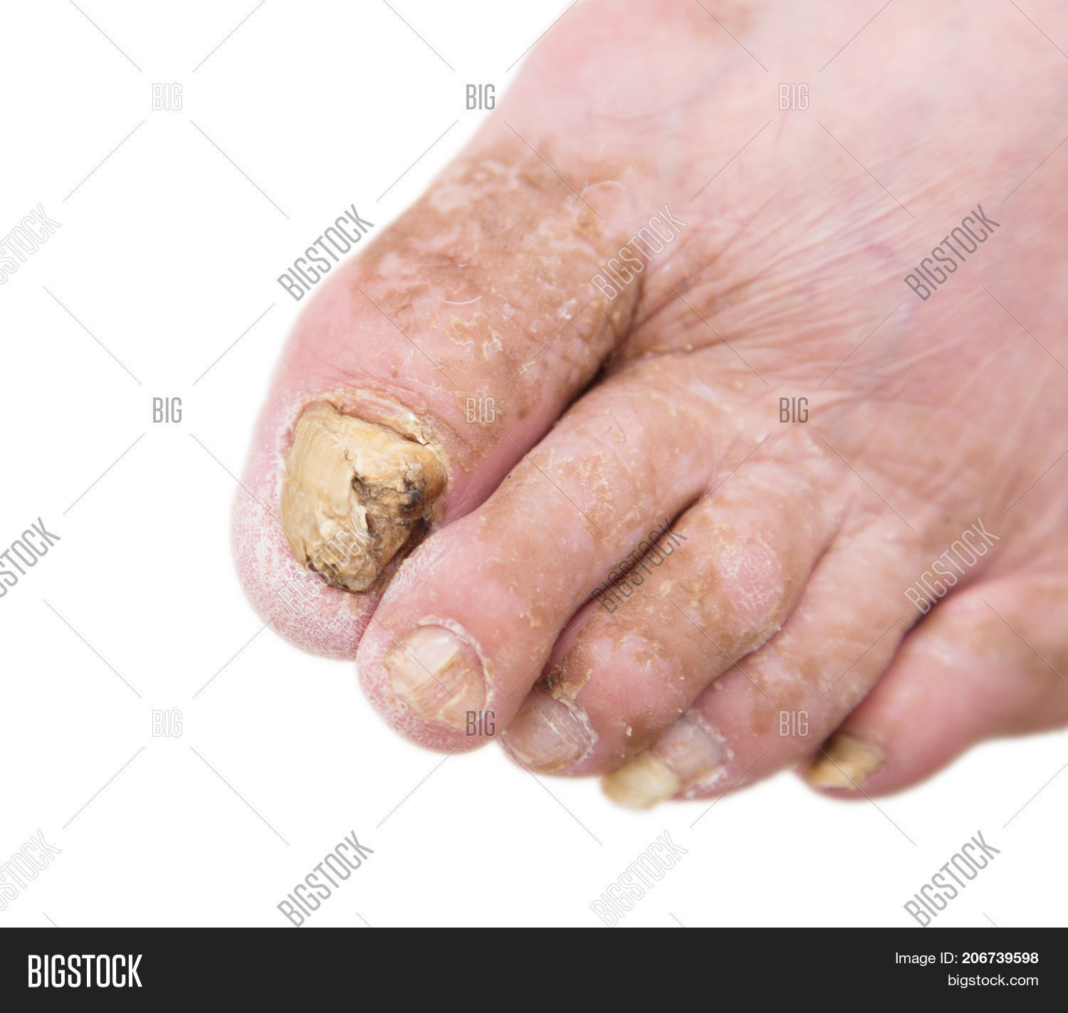 Fungus Infection On Nails Man\'s Image & Photo | Bigstock