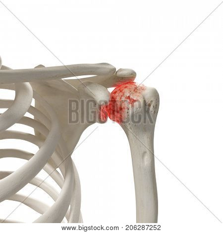 3d rendered medically accurate illustration of an arthritic shoulder